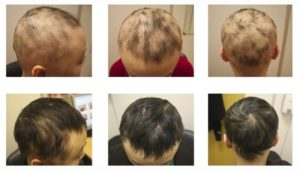 Is Your Child Losing Hair? You Might Check For These!
