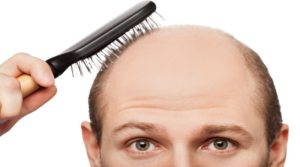 Hair loss causes with treatment