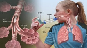 EMERGENCY TREATMENT MODE IN ASTHMA ATTACKS
