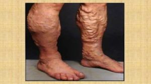 BEST EVER HOME REMEDY TO treat VARICOSE VEINS NATURALLY WITHOUT ANY SIDE EFFECTS