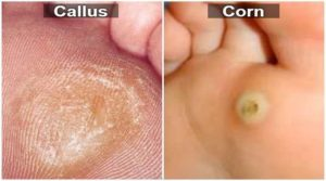 Know more about corn and calluses!