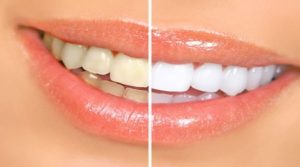 Super home remedies to whiten your teeth