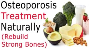 Prevent your osteoporosis with healthy nutrition!