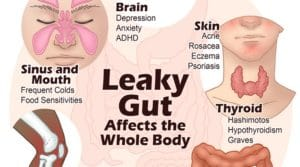 Know more about leaky gut syndrome!