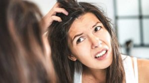 7 Ways to How to Get Rid of Dandruff Naturally?