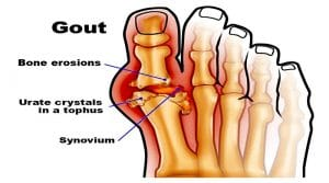 Healthy Home remedy Method in Treating Gout Naturally