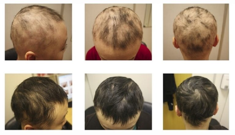 alopecia areata an autoimmune disease biology essay Alopecia areata (aa) alopecia areata disease characteristics  progression of (a) patchy alopecia areata to (b) alopecia totalis fig 6.