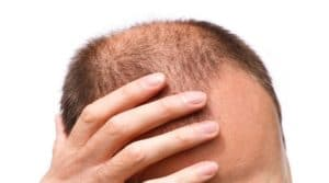 Top Healthy Ways of Preventing Hair Loss Excessively