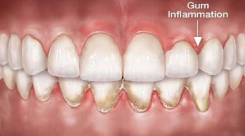 Pain In Teeth And Gums Home Remedies