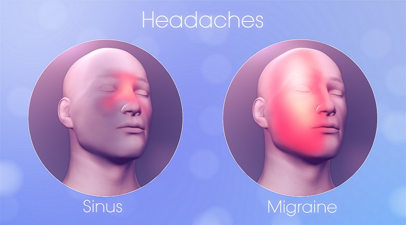 Sinus headache VS Migraine Pain