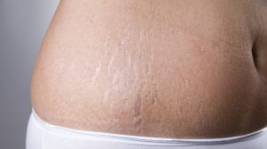 HOME REMEDIES IN TREATING STRETCH MARKS