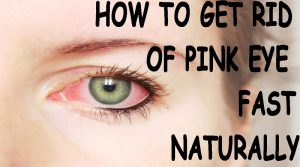 10 BEST HOME REMEDIES IN TREATING PINK EYE SYMPTOMS