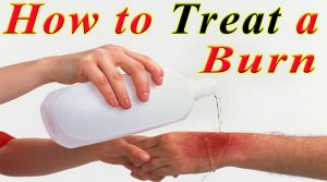 BEST HOME REMEDIES IN TREATING BURNS