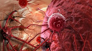 DO YOU KNOW CANCER IS A BIG BUSINESS AND NOT A DISEASE? THE REAL TRUTH BEHIND THE SCENE