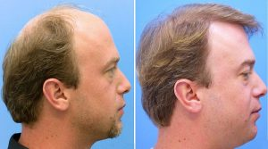 HOW LONG DOES IT TAKE TO RECOVER FROM A HAIR TRANSPLANT?