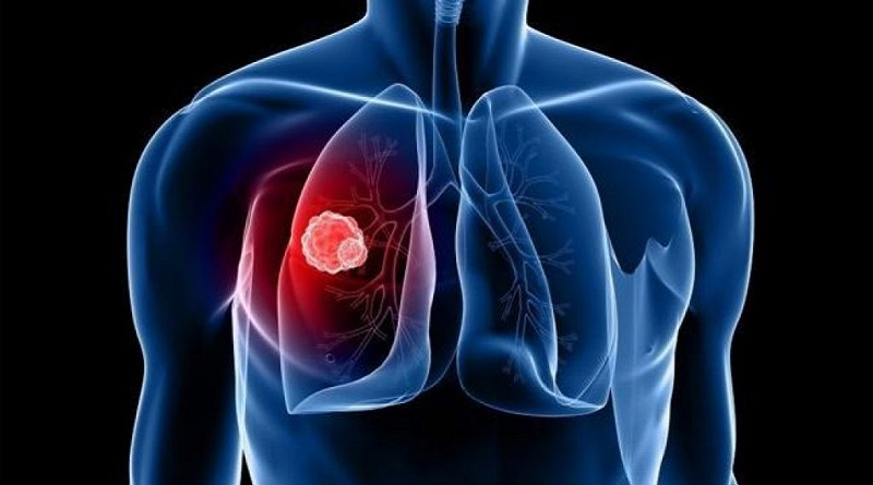 WHAT IS LUNG CANCER? WHAT ARE SOME OF THE LUNG CANCER TREATMENTS?